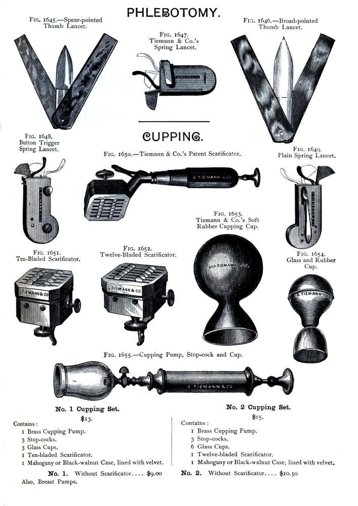 در اروپا، حجامت بخش مهمی از درمان بود و به شکل سنتی تا اوایل قرن بیستم به کار میرفت. برگرفته از Davis and Apple, Bloodletting Instruments.